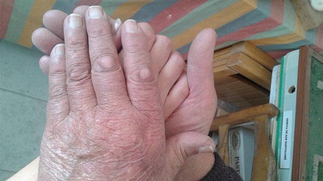 Relato cuidador familiar: Begoña García